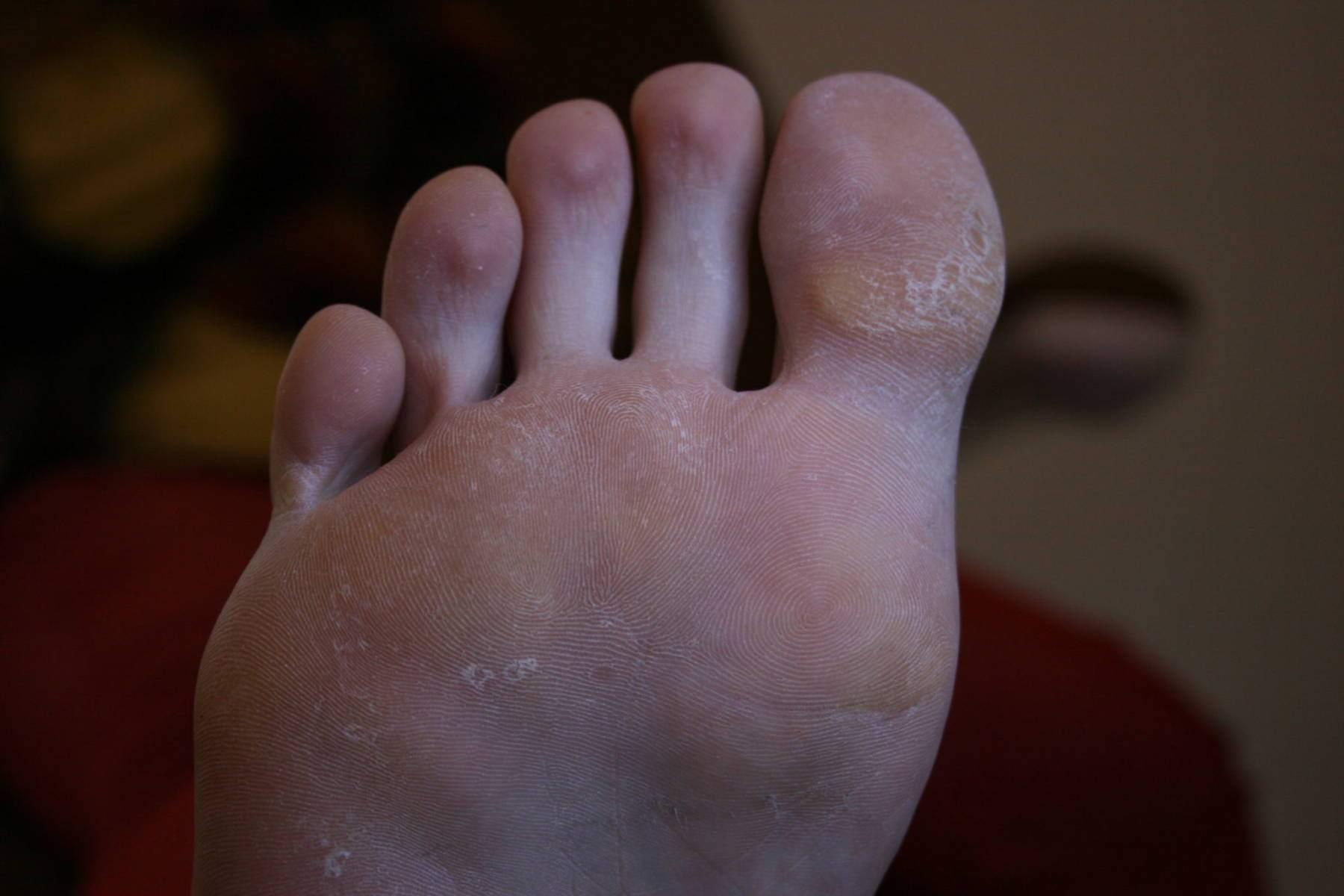 sucha stopa i licznie drobne modzele u młodej pacjentki chorującej na cukrzyce