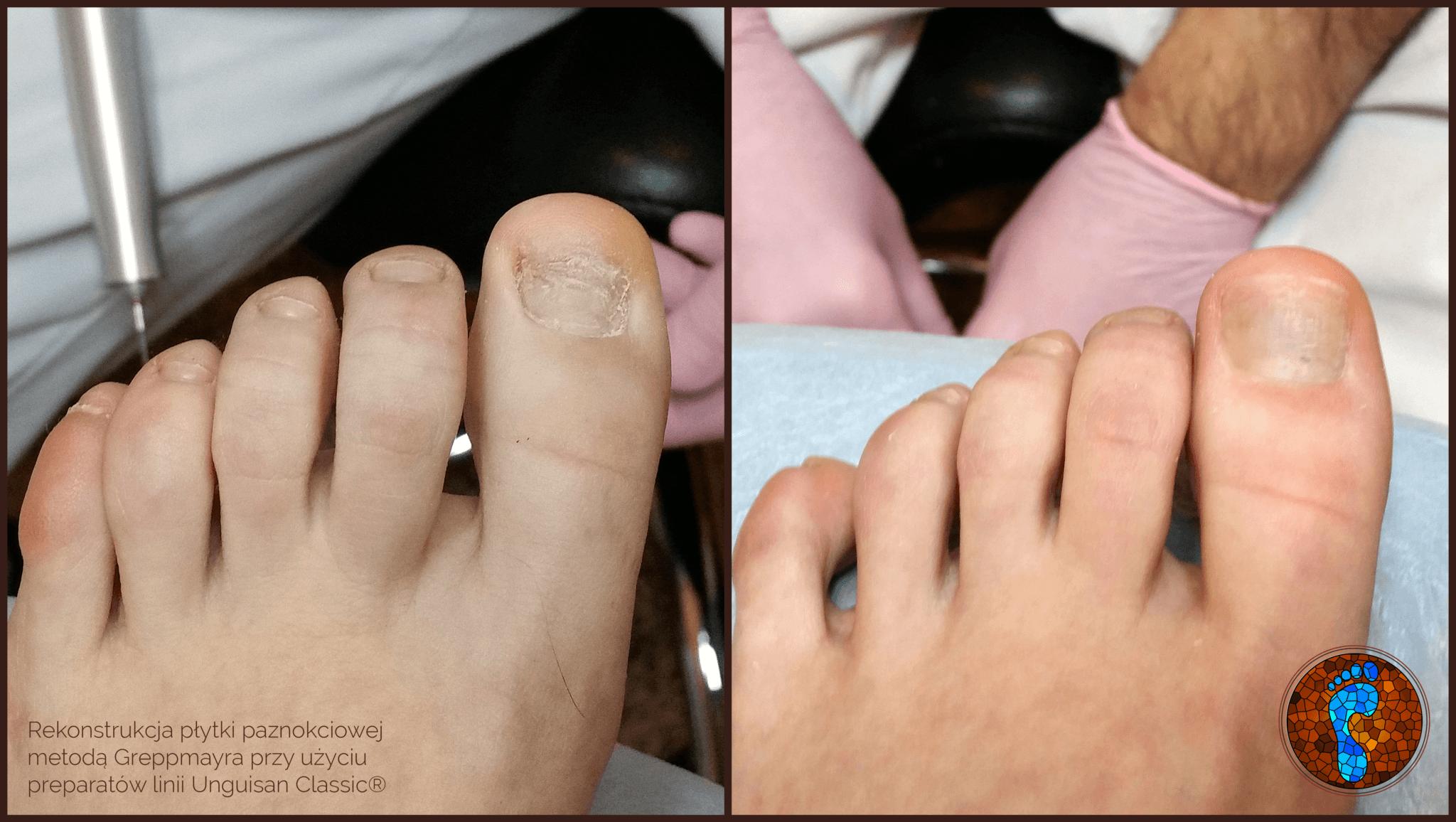 Szkolenia - Rekonstrukcja płytki paznokciowej podolog24