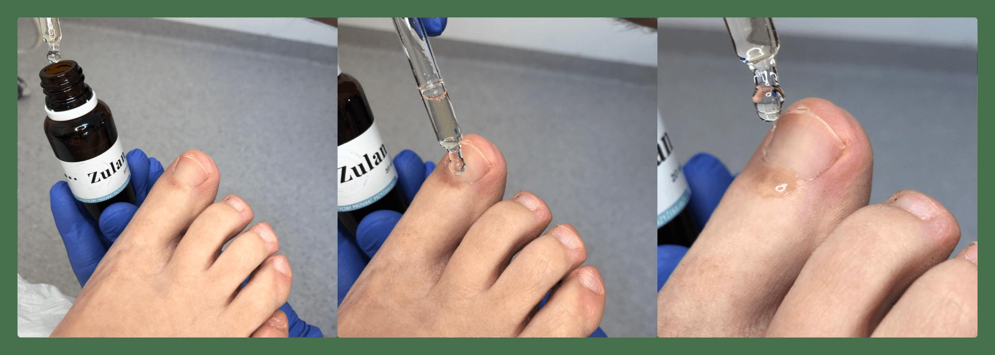 zulan 5 - Przykłady stosowania ZULAN™ w praktyce podologicznej